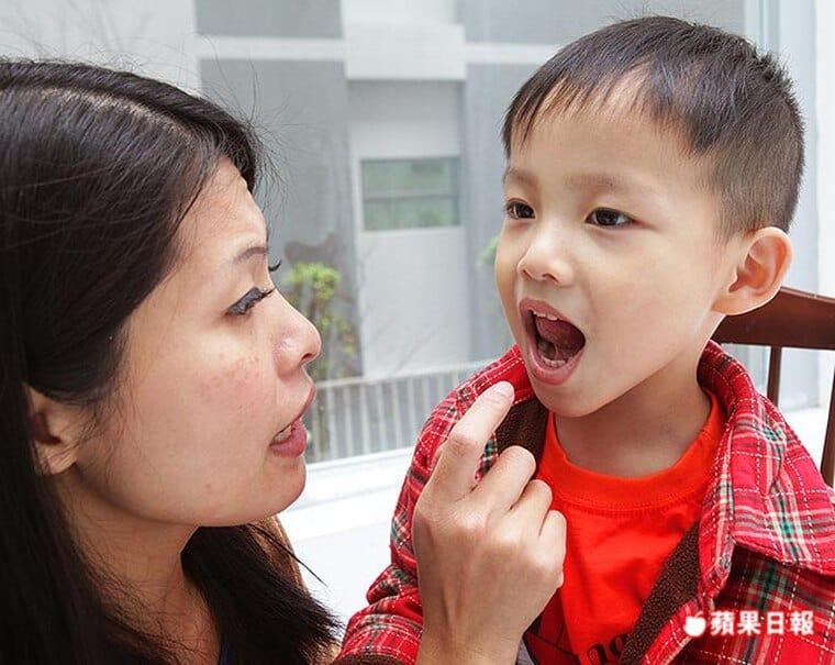 乳牙蛀壞速度比大人恆齒快-勿等牙痛才就醫-柏登牙醫-兒童蛀牙衛教5