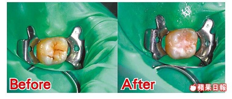 乳牙蛀壞速度比大人恆齒快-勿等牙痛才就醫-柏登牙醫-兒童蛀牙衛教6
