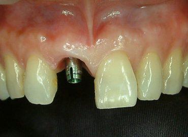 人工植牙-前-柏登牙醫