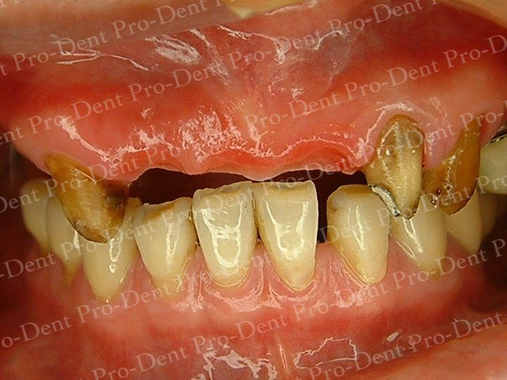 人工植牙-柏登牙醫案例分享-案例一1-结果-1
