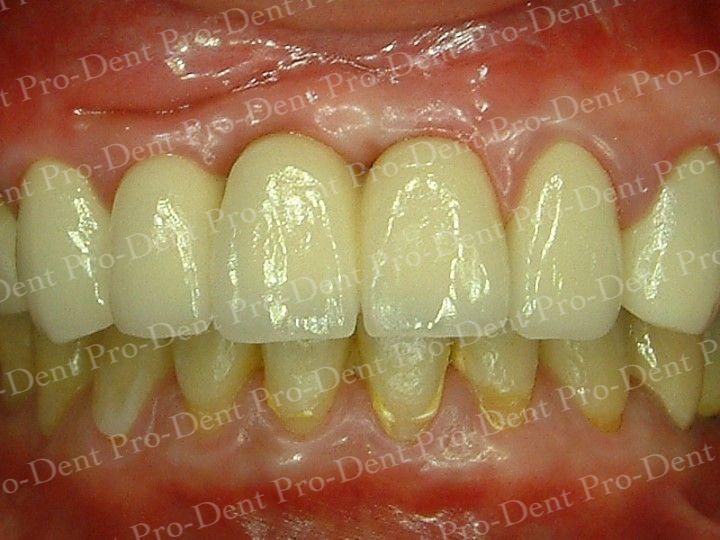 人工植牙-柏登牙醫案例分享-案例一3-结果-3