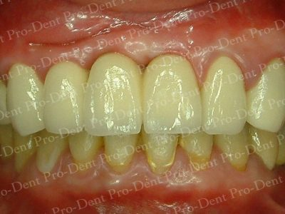 人工植牙-柏登牙醫案例分享-案例一3-结果