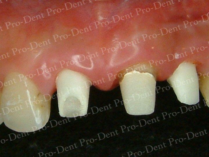人工植牙-柏登牙醫案例分享-案例三2-结果-1