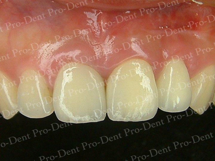 人工植牙-柏登牙醫案例分享-案例三3-结果-1