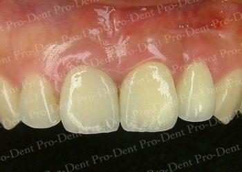 人工植牙-柏登牙醫案例分享-案例三3-结果