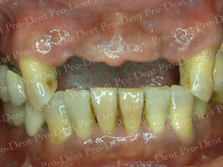 人工植牙-柏登牙醫案例分享-案例二1-结果-1
