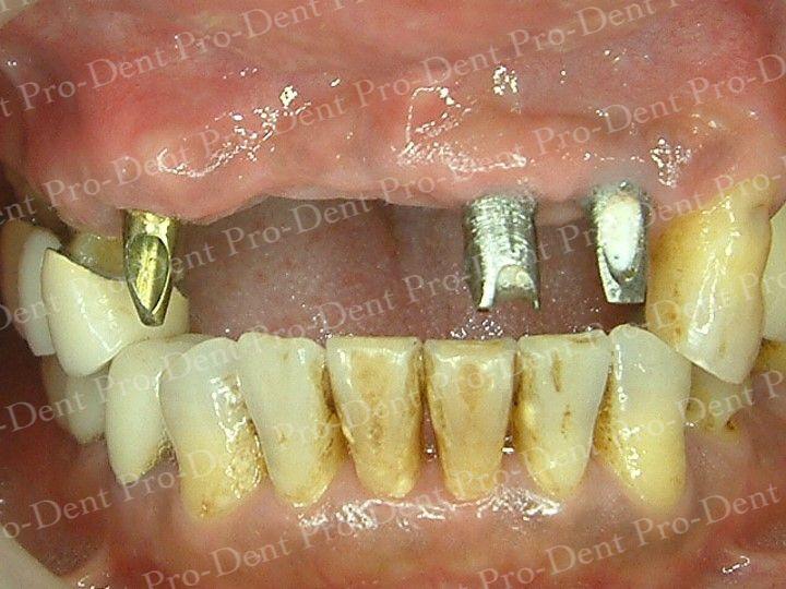 人工植牙-柏登牙醫案例分享-案例二2-结果-1