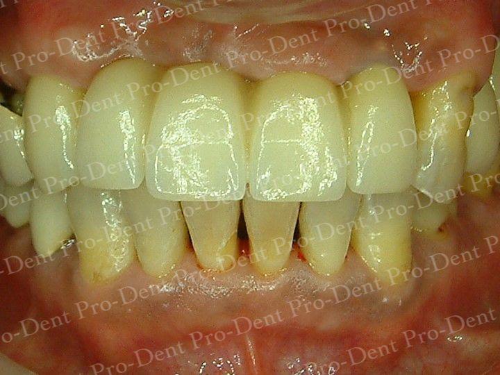 人工植牙-柏登牙醫案例分享-案例二3-结果