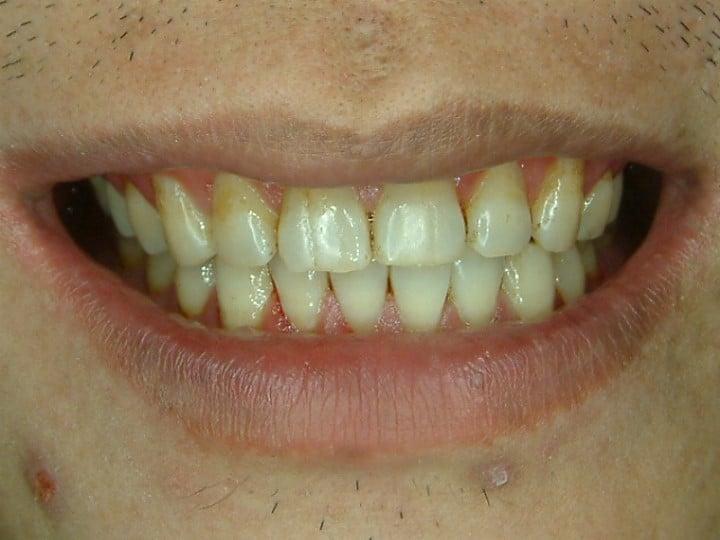 口腔SPA-後-柏登牙醫