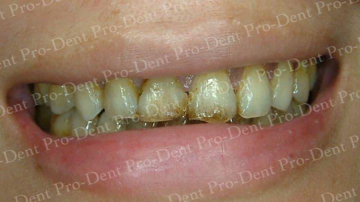 口腔SPA-柏登牙醫案例分享-案例一1-结果