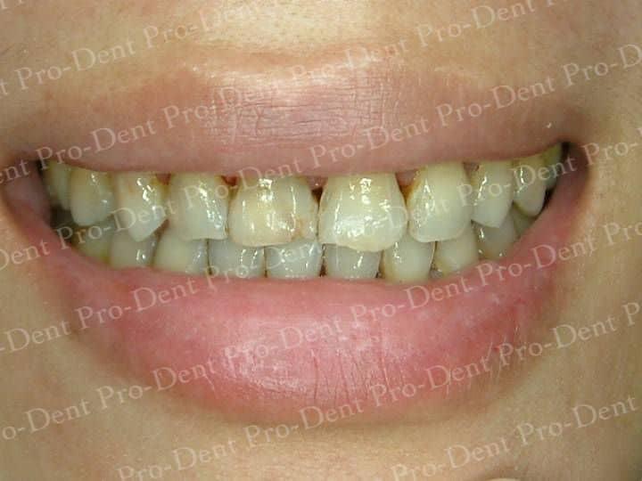口腔SPA-柏登牙醫案例分享-案例一2-结果