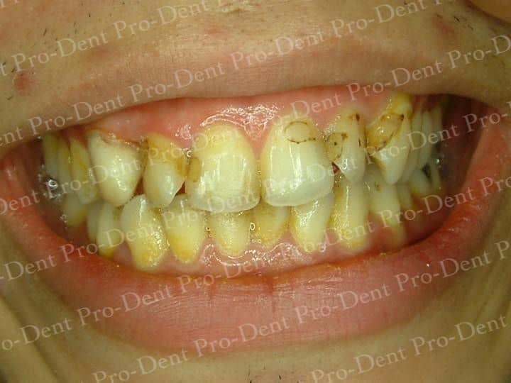 口腔SPA-柏登牙醫案例分享-案例三1-结果-1