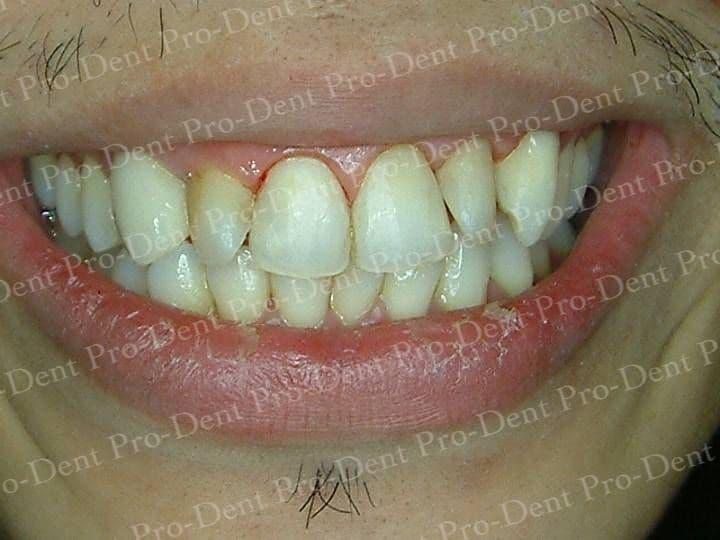 口腔SPA-柏登牙醫案例分享-案例三2-结果