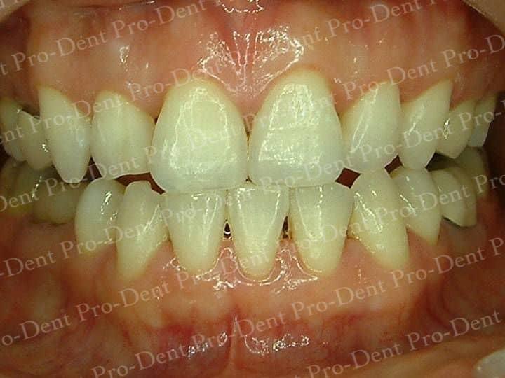 口腔SPA-柏登牙醫案例分享-案例二2-结果