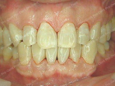 口腔SPA-柏登牙醫案例分享-案例七-治療後