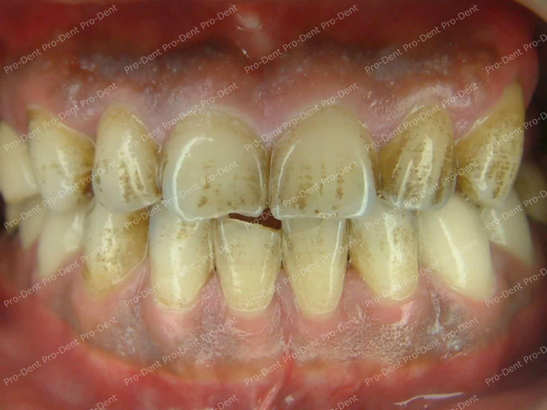 口腔SPA-柏登牙醫案例分享-治療前40