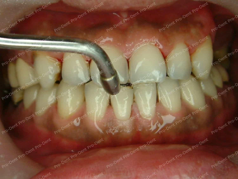 口腔SPA-柏登牙醫案例分享-治療中40