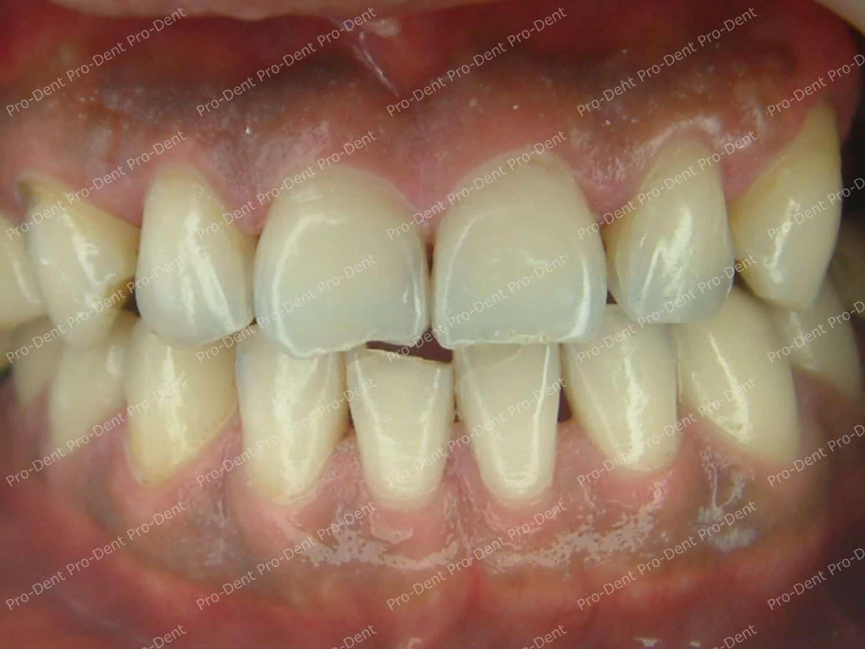 口腔SPA-柏登牙醫案例分享-治療後40