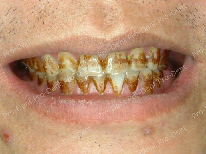 口腔SPA-柏登牙醫案例分享-案例五1-治療前