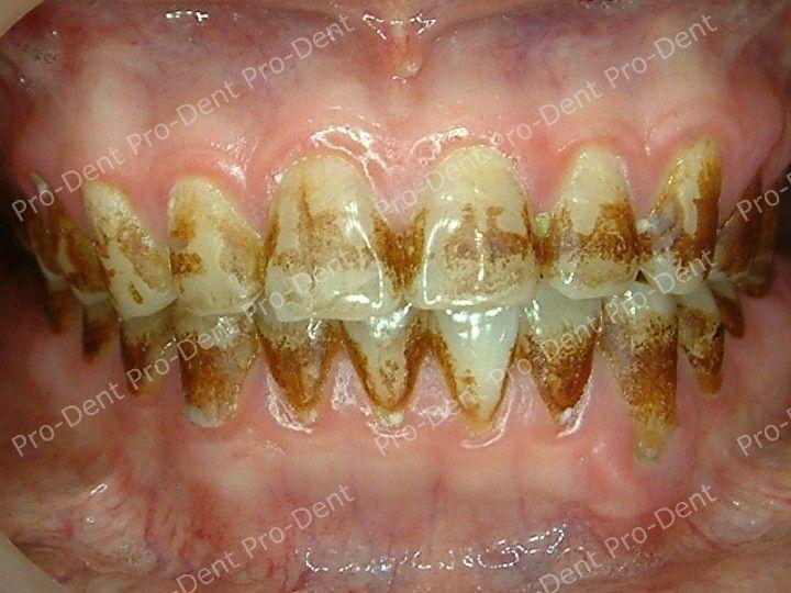 口腔SPA-柏登牙醫案例分享-案例五2-治療前