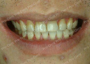口腔SPA-柏登牙醫案例分享-案例五3-治療後