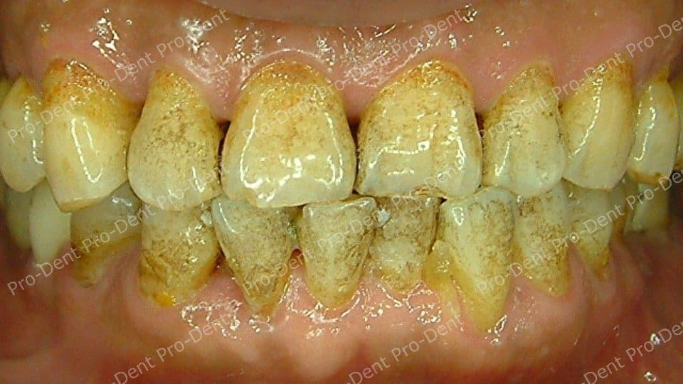 口腔SPA-柏登牙醫案例分享-案例六2-治療中