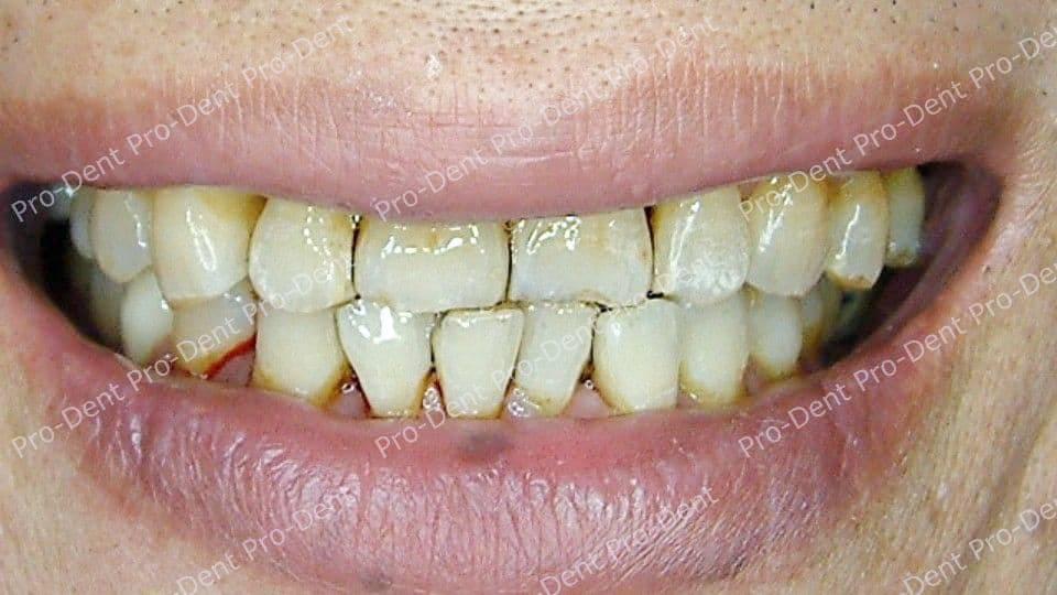 口腔SPA-案例分享-治療後
