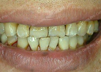 口腔SPA-柏登牙醫案例分享-案例六3-治療後