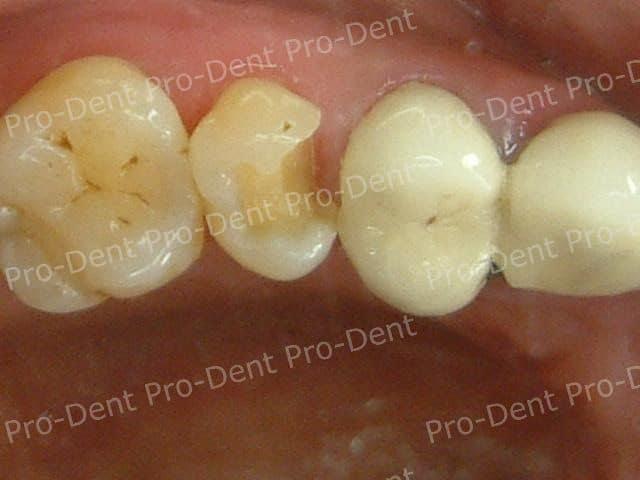局部牙冠(3D齒雕)案例分享-治療前