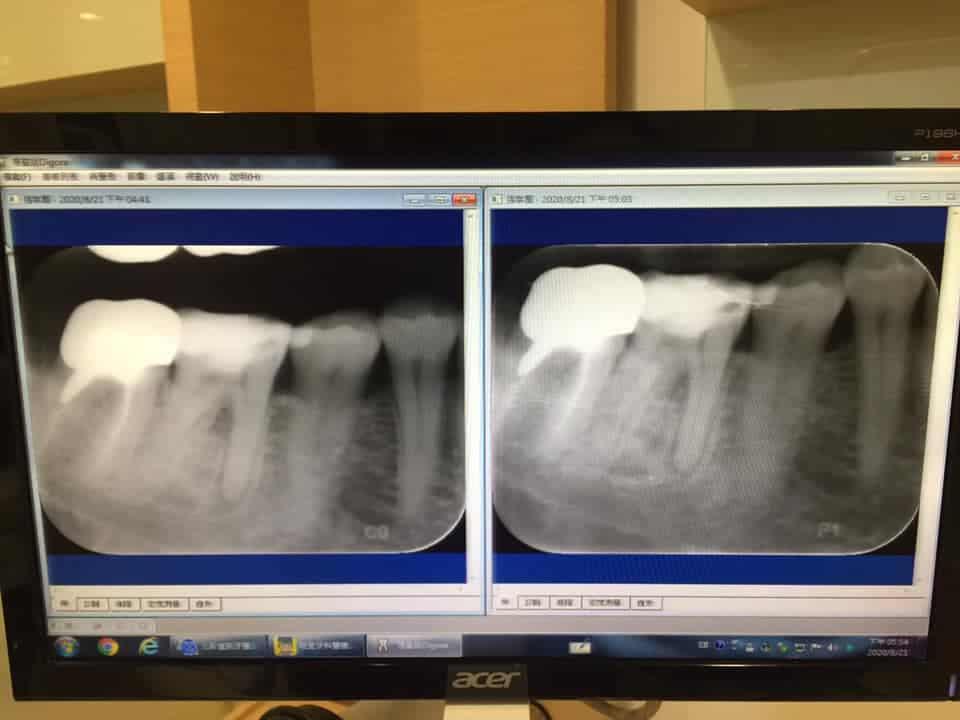 張凱蒂牙齒久痛不癒,不用顯微根管,柏登牙醫快速找到病症,一勞永逸-1