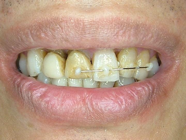 微笑美學重建-前柏登牙醫