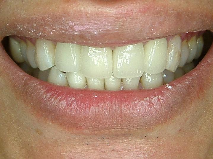 微笑美學重建-後柏登牙醫