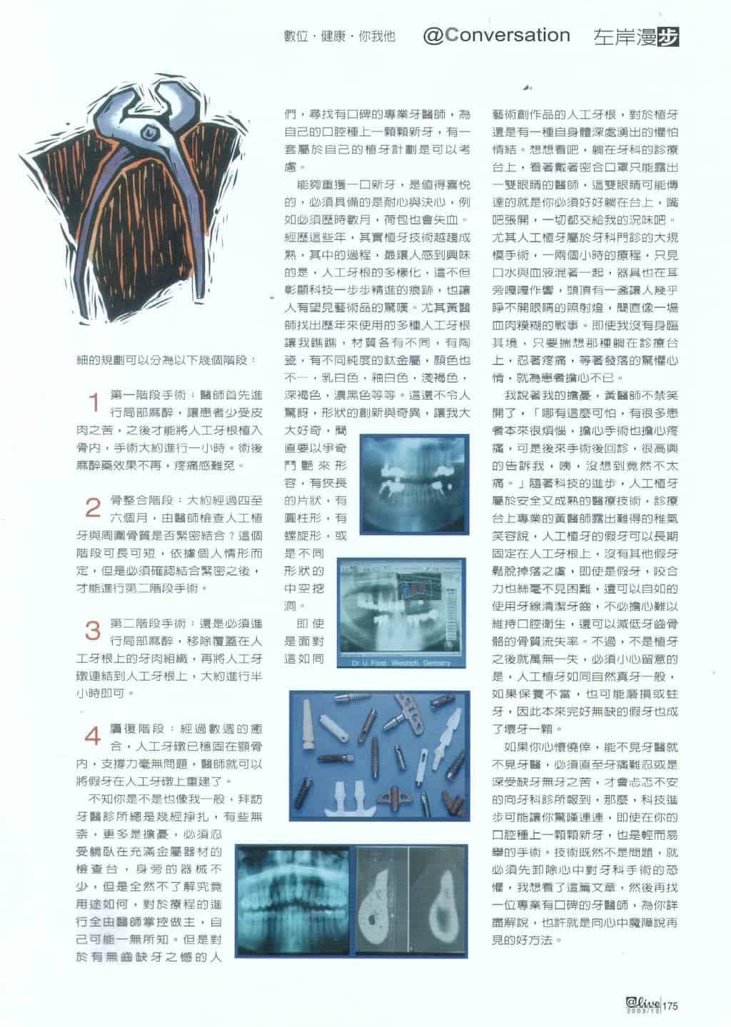 數位時尚雜誌-種一棵新牙-柏登牙醫人工植牙知識-3