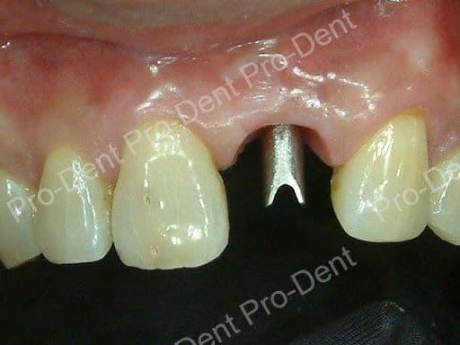 人工植牙案例分享-治療中
