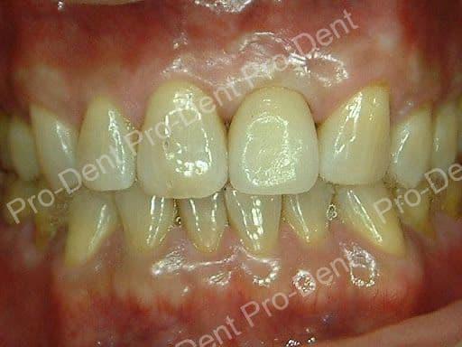 人工植牙案例分享-治療後