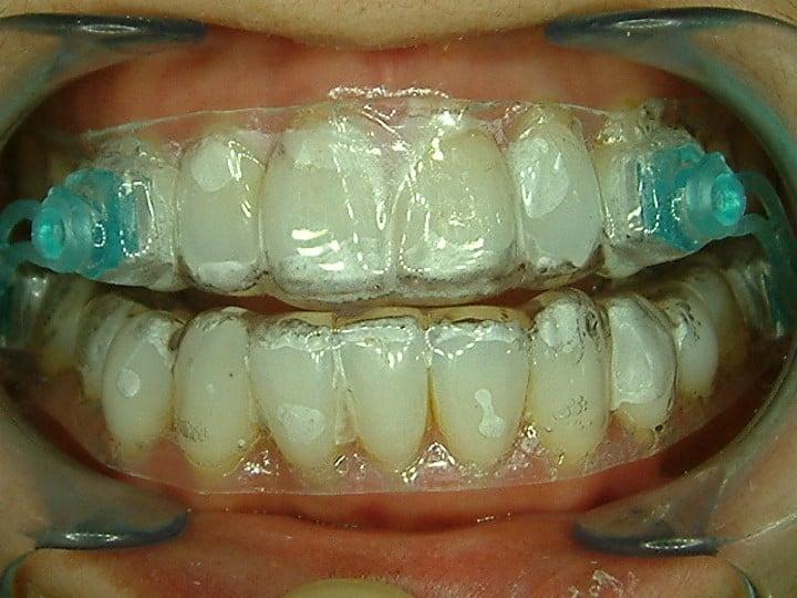 止鼾牙醫-1-柏登牙醫
