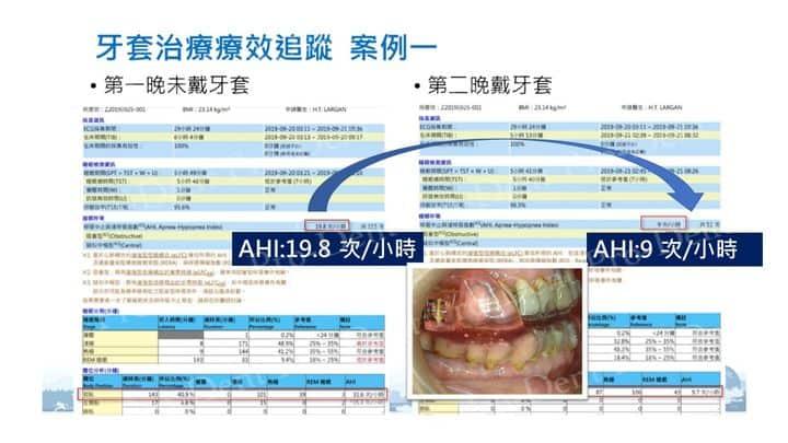 止鼾-柏登牙醫案例分享-案例一2-结果