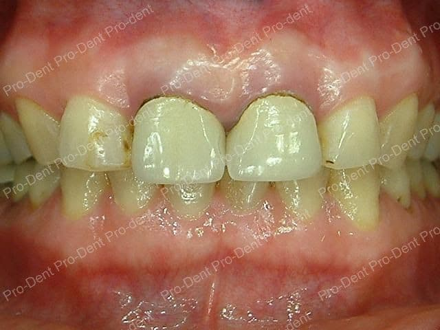 牙齒保存術-牙周病之牙冠增長手術-治療前
