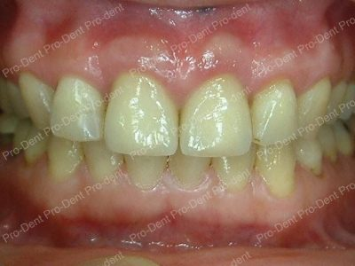 牙齒保存術-牙周病之牙冠增長手術-治療後