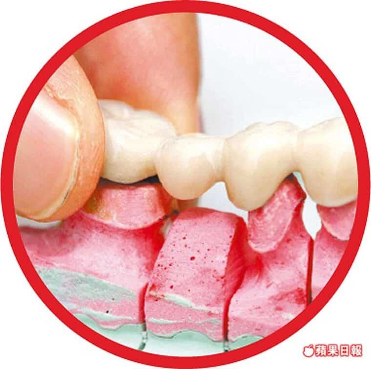 牙科醫師告訴您-護齒5錯誤-加速熟齡爛牙-柏登牙醫診所-醫師團隊-衛教資訊-11