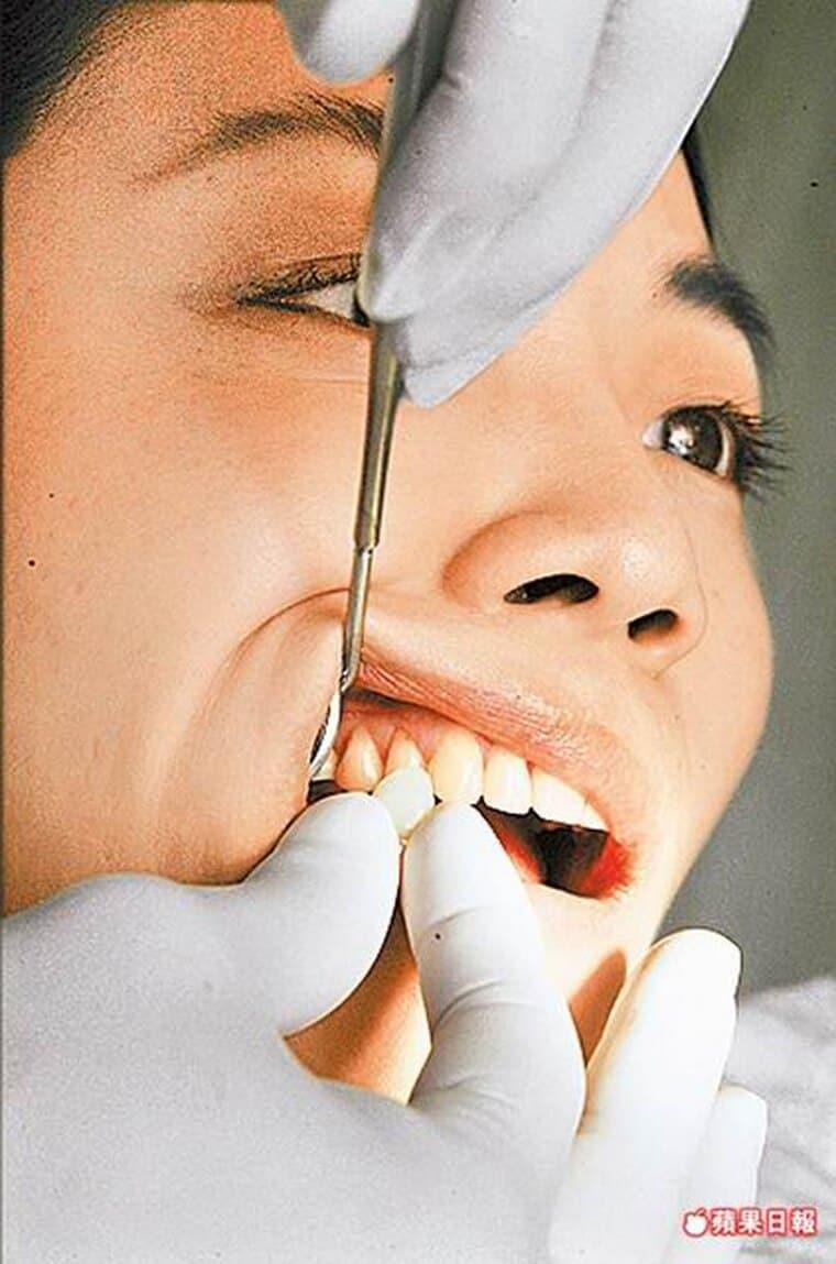牙齒美白激增3成-六月結婚潮-柏登牙醫-美白牙齒衛教7-2