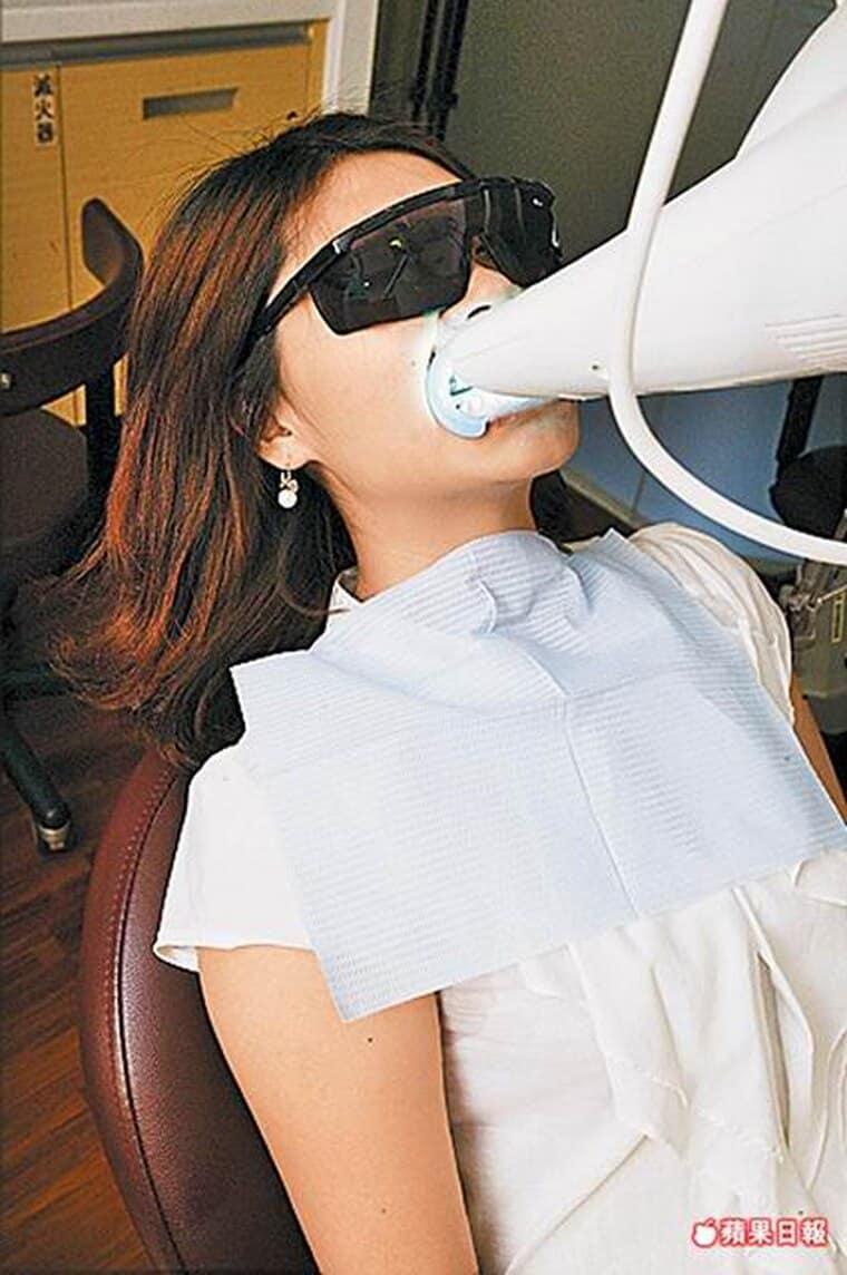 牙齒美白激增3成-六月結婚潮-柏登牙醫-美白牙齒衛教8-2