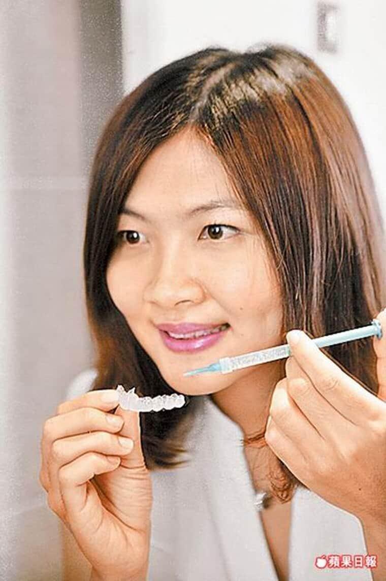 牙齒美白激增3成-六月結婚潮-柏登牙醫-美白牙齒衛教9-2