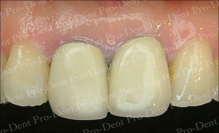 精密瓷牙-柏登牙醫案例分享-案例一1-结果-1