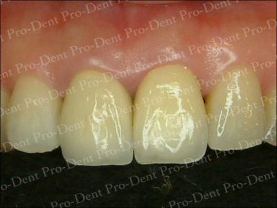 精密瓷牙-柏登牙醫案例分享-案例一2-结果