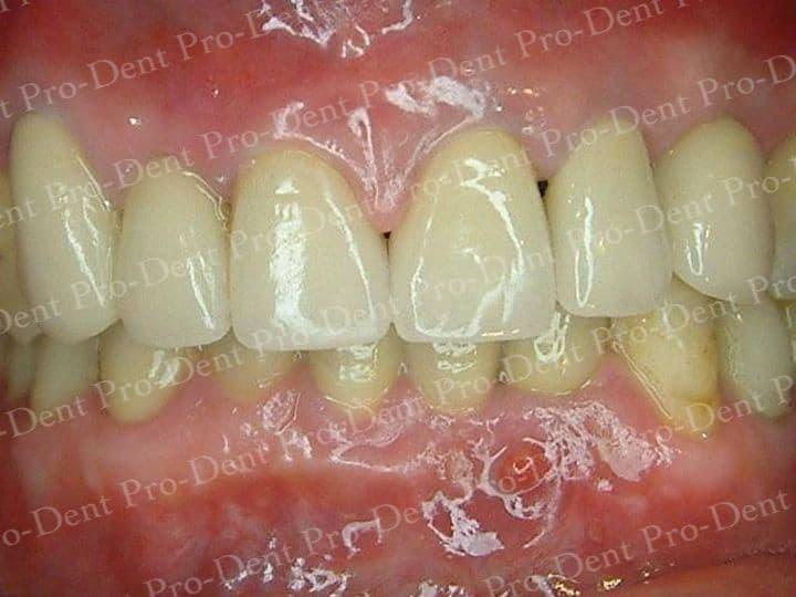精密瓷牙-柏登牙醫案例分享-案例三2-结果-1