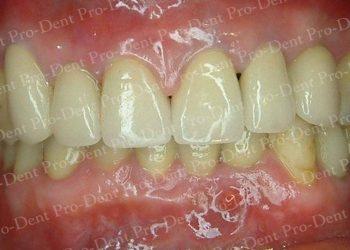 精密瓷牙-柏登牙醫案例分享-案例三2-结果