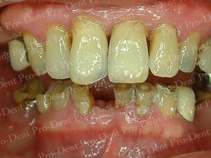 精密瓷牙-柏登牙醫案例分享-案例二1-结果-1