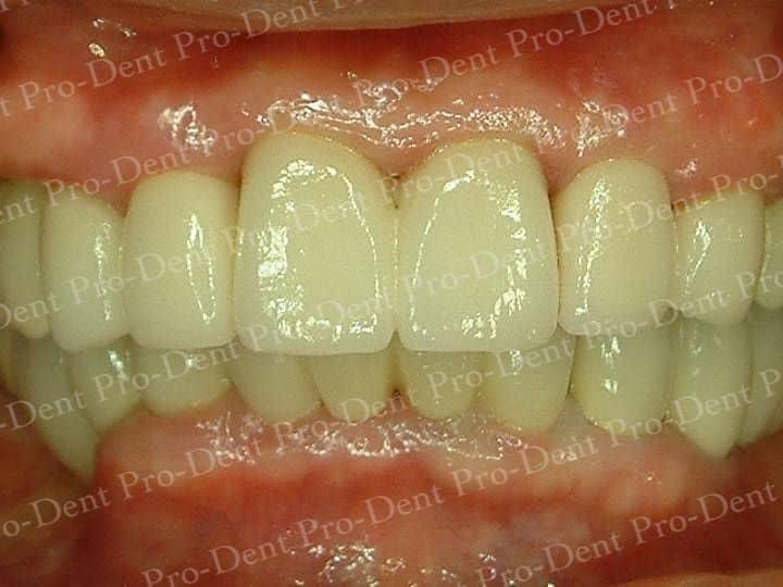 精密瓷牙-柏登牙醫案例分享-案例二2-结果-1