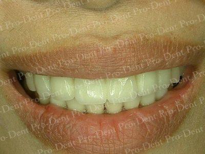 美學重建-柏登牙醫案例分享-案例一2-结果